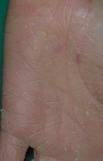 Atopichesky la dermatitis blyashechnaya la forma el tratamiento
