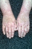 localisation: hands, wrists, diagnosis: Atopic Eczema