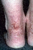 localisation: lower leg, heel, diagnosis: Atopic Eczema