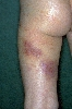 localisation: upper leg, diagnosis: Atopic Eczema