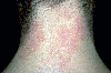 localisation: back of neck, diagnosis: Atopic Eczema