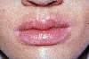 localisation: angle of the mouth, lips (skin), peri-oral, diagnosis: Cheilitis Simplex, Atopic Eczema