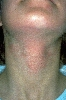 localisation: neck, diagnosis: Phytophotodermatitis
