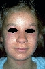 localisation: around the eyes, diagnosis: Phytophotodermatitis
