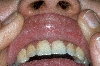 localisation: mucous membrane of the mouth, diagnosis: Morsicatio Buccarum