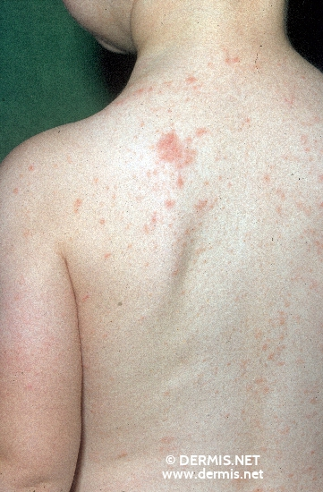 localisation: back diagnosis: Nummular Eczema