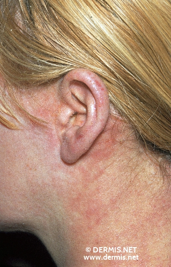 localisation: retro-auricular  diagnosis: Atopic Eczema