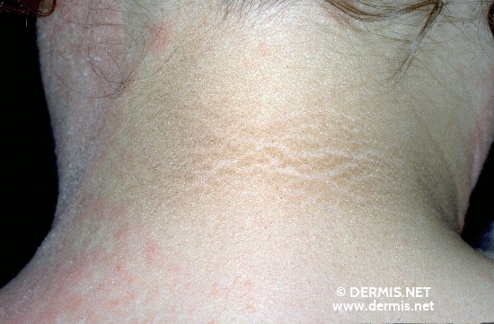 localisation: back of neck diagnosis: Atopic Eczema