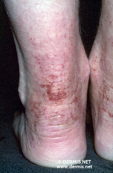 localisation: lower leg heel diagnosis: Atopic Eczema