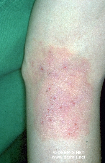localisation: upper leg diagnosis: Atopic Eczema
