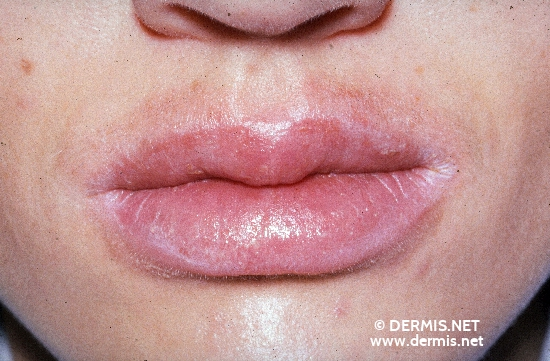 localisation: angle of the mouth lips (skin) peri-oral diagnosis: Cheilitis Simplex Atopic Eczema