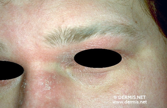 localisation: forehead nasal diagnosis: Allergic Contact Dermatitis, Acute & Chronic
