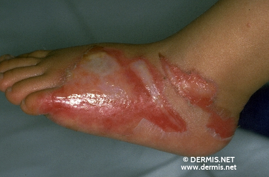 localisation: back of the feet diagnosis: Burn / Scald, Second-Degree