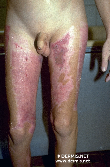 localisation: upper leg diagnosis: Burn / Scald, Second-Degree