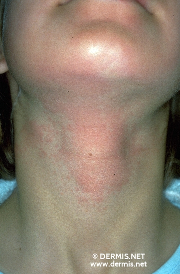 localisation: neck diagnosis: Phytophotodermatitis