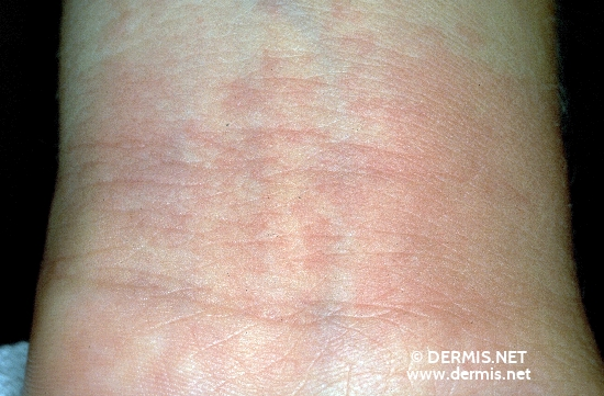localisation: wrists diagnosis: Phytophotodermatitis