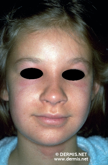 localisation: around the eyes diagnosis: Phytophotodermatitis