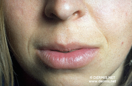 localisation: lower lip diagnosis: Cheilitis Granulomatosa of Miescher