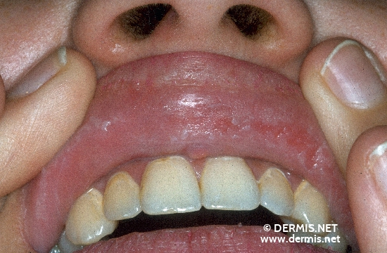 localisation: mucous membrane of the mouth diagnosis: Morsicatio Buccarum