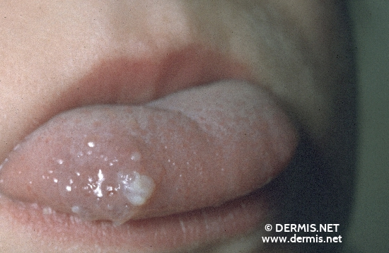 localisation: tongue diagnosis: Lymphangioma