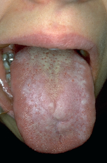localisation: tongue diagnosis: Lichen Planus