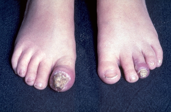localisation: toe toenail periungual (toe nail) diagnosis: Candida Onychomycosis and Paronychia