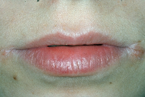 localisation: angle of the mouth diagnosis: Angulus Infectiosus