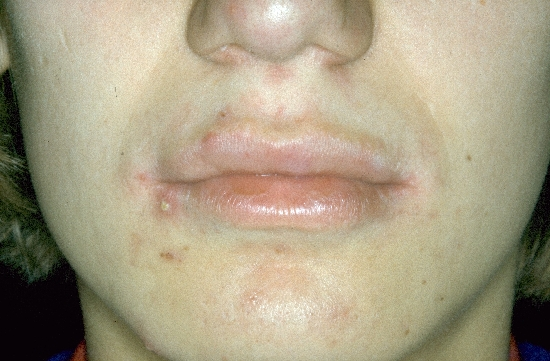 localisation: lips (skin) diagnosis: Granuloma Candidomycetica