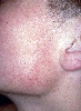 localisation: cheek, diagnosis: Keratosis Pilaris