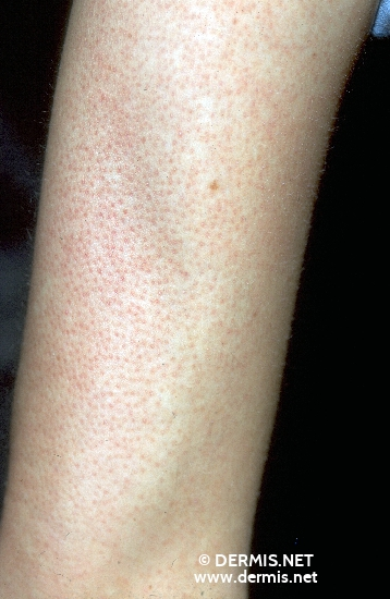 localisation: upper arms diagnosis: Keratosis Pilaris