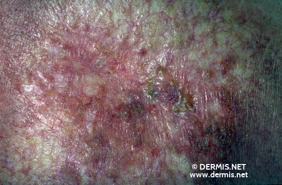 diagnosis: Radiodermatitis, Chronic