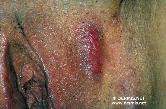 diagnosis: Acne Inversa