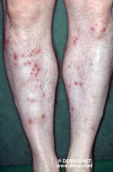 diagnosis: Lymphomatoid Papulosis