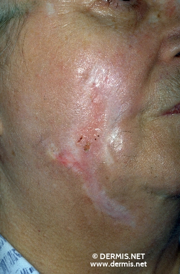 diagnóstico: Dermatitis facticia