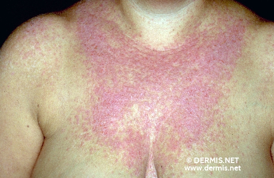 diagnosis: Dyskeratosis Follicularis