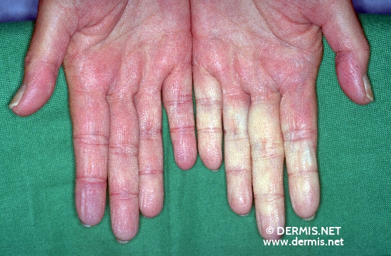 diagnosis: Raynaud's Disease