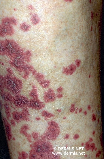diagnosis: Allergic Vasculitis