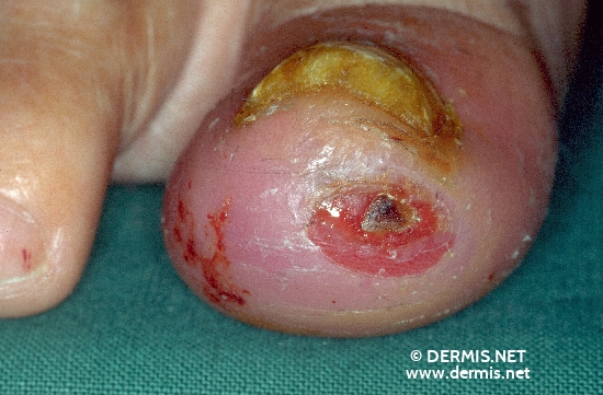 diagnosis: Onychomycosis Neurotrophic Ulcerations