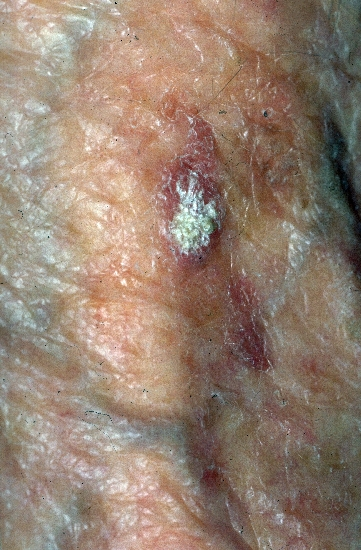 diagnosis: Actinic Keratosis