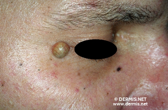 diagnosis: Epidermal Cyst