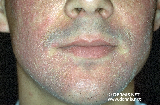Lupus vulgaris | Define Lupus vulgaris at Dictionary.com