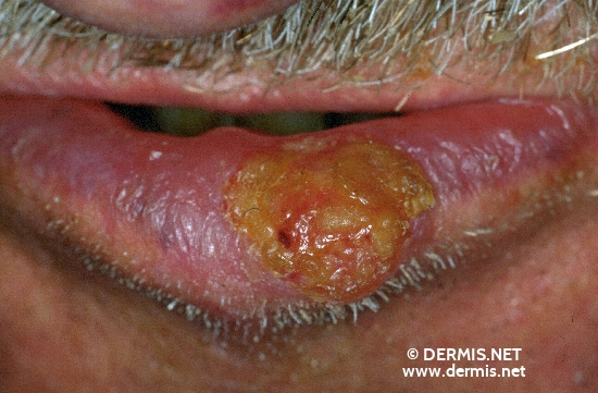 diagnosis: Carcinoma of Lip Actinic Cheilitis