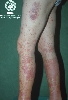 Diagnose: Vasculitis allergica