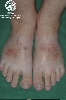 Diagnose: Hypereosinophile Dermatitis
