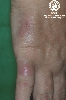 diagnosis: Sarcoidosis of the Skin, Plaque Form