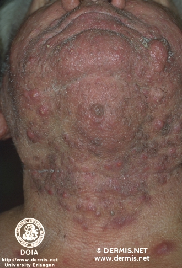 diagnosis: Acne Conglobata