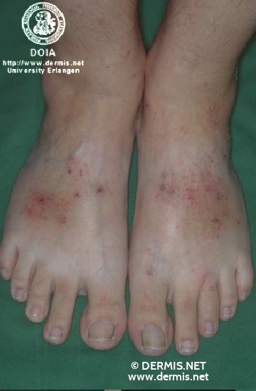 diagnosis: Hypereosinophilic Dermatitis