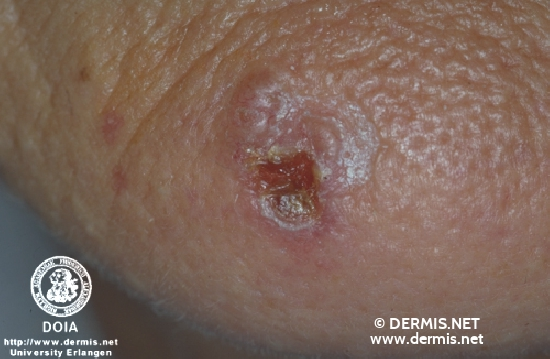 diagnosis: Solid-Cystic Basal Cell Carcinoma Basal Cell Carcinoma, Ulcerating