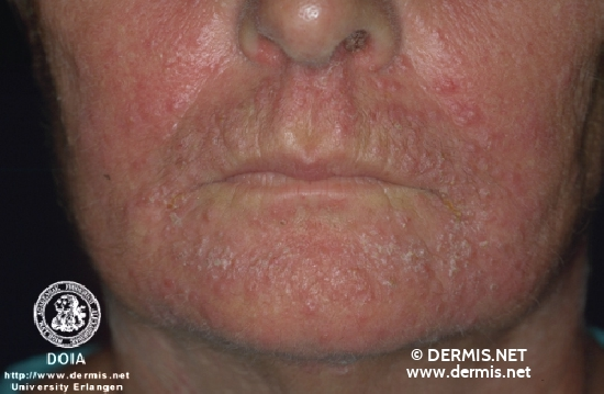 diagnosis: Perioral Dermatitis