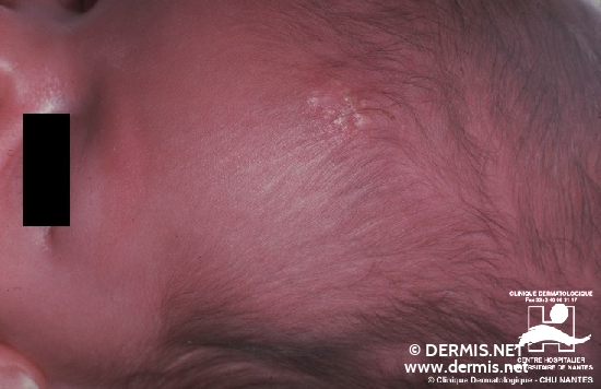 diagnosis: Calcinosis Cutis